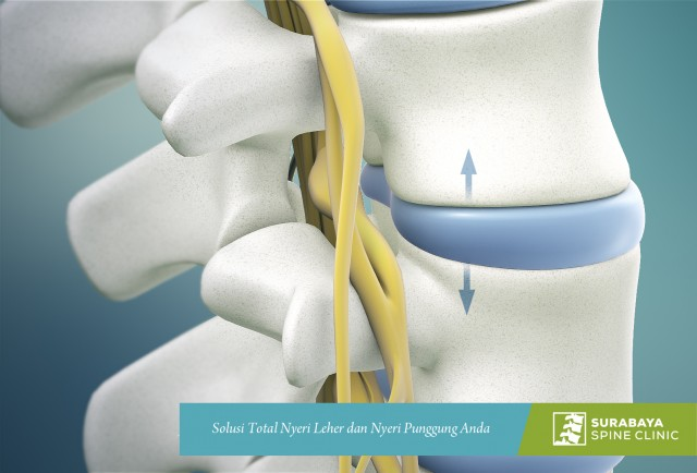 Microdiscectomy (Microdecompression) Spine Surgery