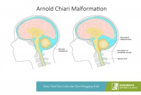Chiari malformations, Down Head Pain