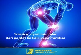 Sciatica , Pain Radiation from The Buttocks to The Feet
