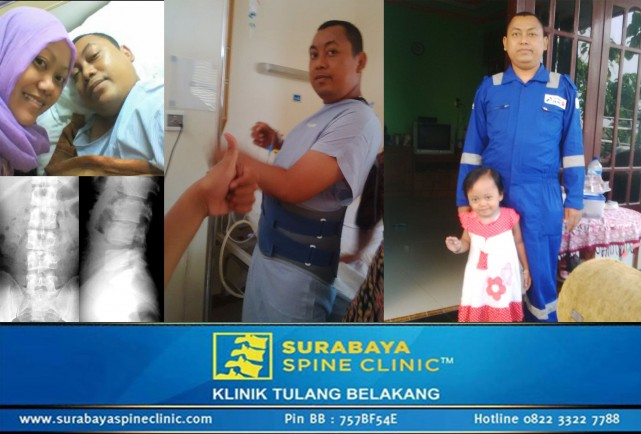 Two Years of Treatment Roving East Java to Recover from Ankylosing TB