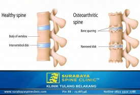 Rheumatoid Arthriritis, Caused Pain In The Back,Neck, Arm and Leg