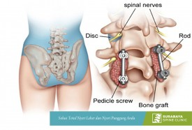 Spinal Fusion with TLIF