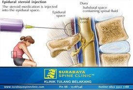 Steroid Epidural Injection