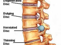 Degenerative Cervical Spine Disorders